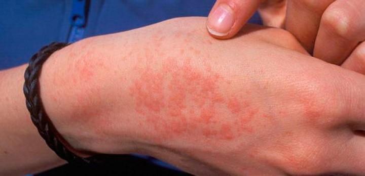Аллергия на аннато