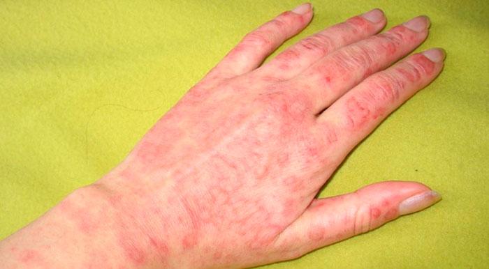Аллергическая реакция на ваниль