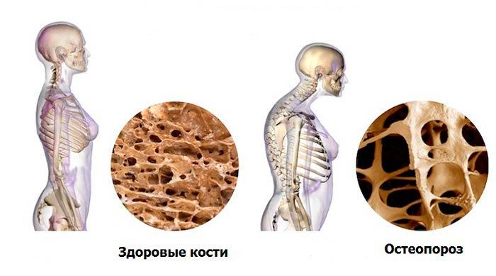 Кунжут при остеопорозе